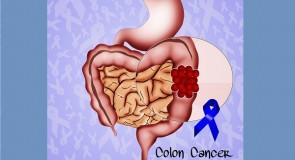 がんについて知ろう。女性に多い大腸がんとは